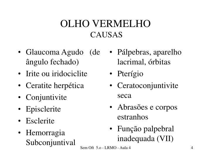 Glaucoma Agudo   (de ângulo fechado)
