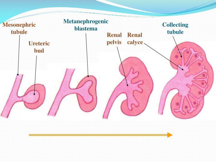 Metanephrogenic blastema
