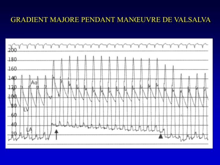 GRADIENT MAJORE PENDANT MANŒUVRE DE VALSALVA