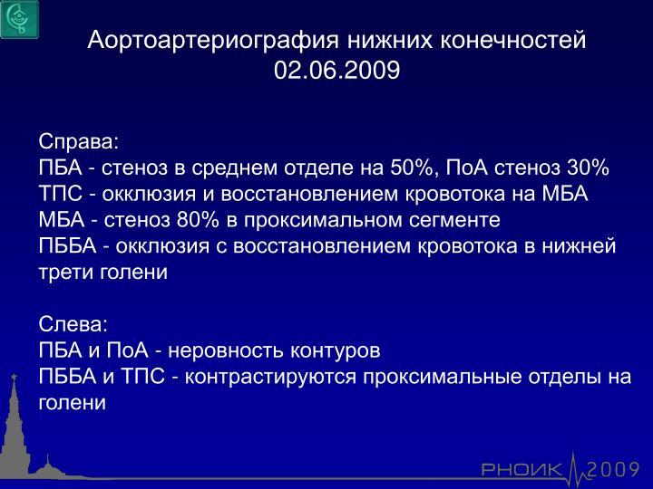 Аортоартериография нижних конечностей 02.06.2009