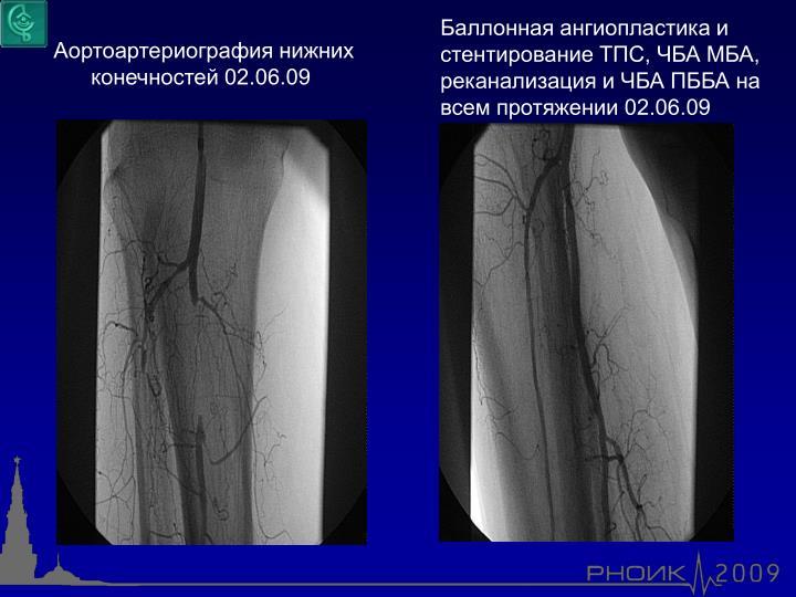 Баллонная ангиопластика и стентирование ТПС, ЧБА МБА, реканализация и ЧБА ПББА на всем протяжении 02.06.09