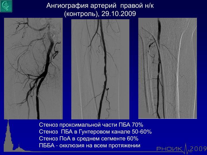Ангиография артерий  правой н/к (контроль), 29.10.2009