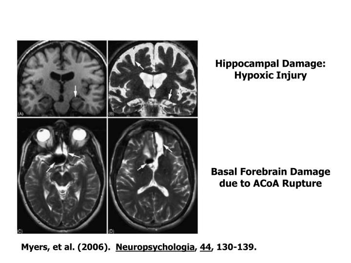 Hippocampal Damage:  Hypoxic Injury