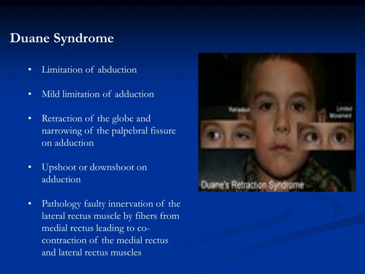 Duane Syndrome