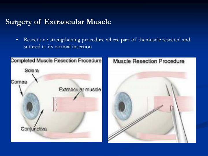 Surgery of Extraocular Muscle