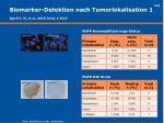biomarker detektion nach tumorlokalisation 1