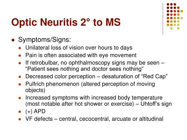 unilateral optic neuritis as a presentation