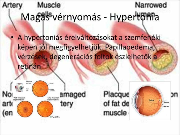 Magas vérnyomás - Hypertonia