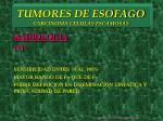 tumores de esofago carcinoma celulas escamosas11