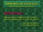 tumores de esofago carcinoma celulas escamosas12