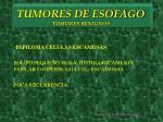 tumores de esofago tumores benignos