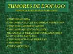 tumores de esofago tumores epiteliales malignos