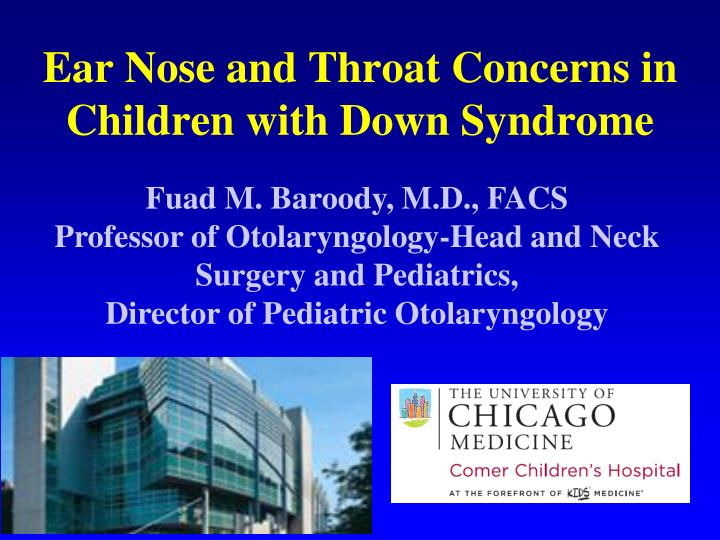 ear nose and throat concerns in children with down syndrome n.