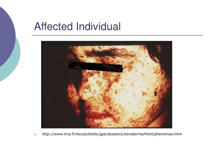Affected individual