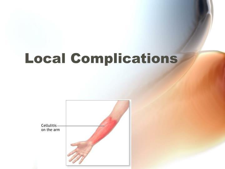 Local Complications