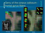 genu of the corpus callosum frontal gyrus fibers