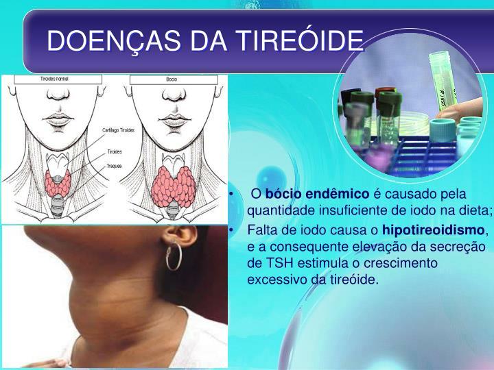 DOENÇAS DA TIREÓIDE