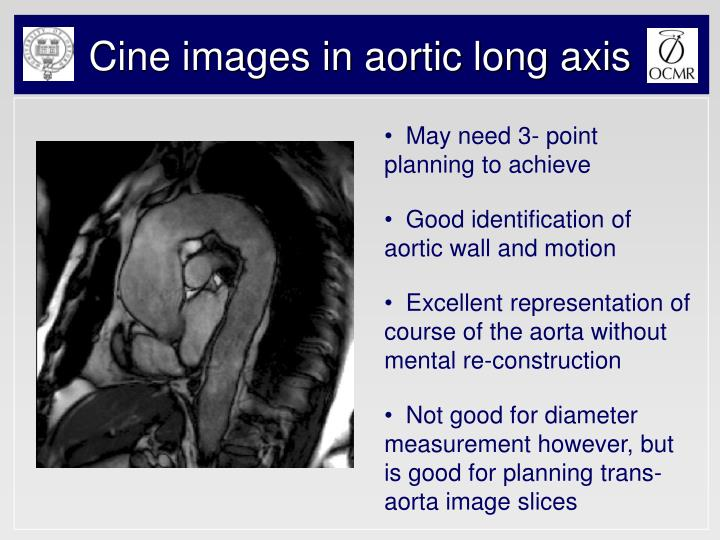 Cine images in aortic long axis