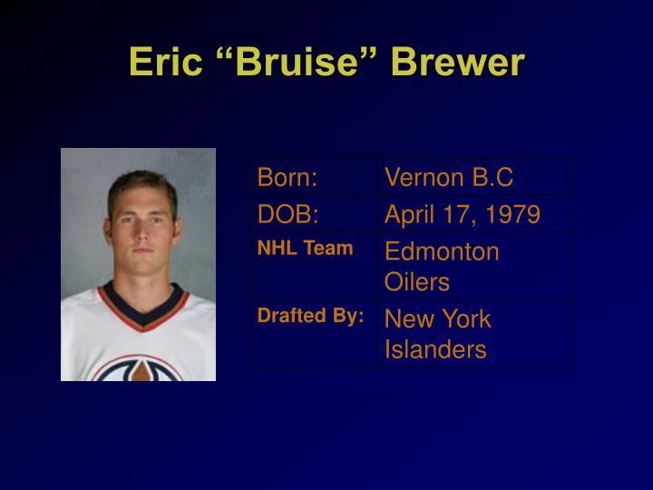 "Eric ""Bruise"" Brewer"