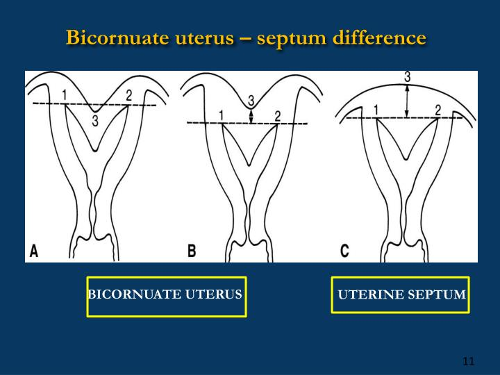 Uterine Septum Hsg PPT - HYSTEROSC...
