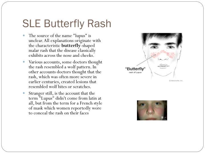 SLE Butterfly Rash