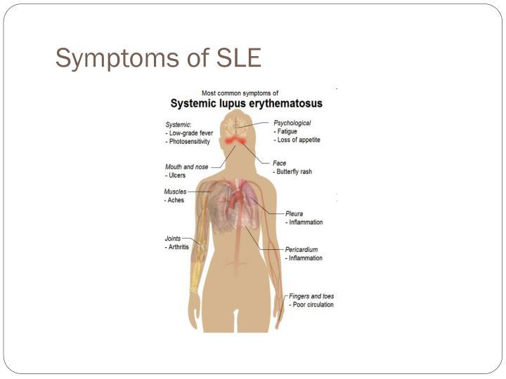 Symptoms of SLE