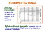 audiometr a tonal4
