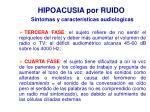 hipoacusia por ruido s ntomas y caracter sticas audiologicas