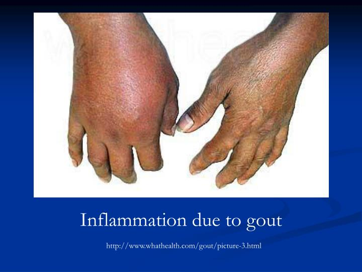 Inflammation due to gout
