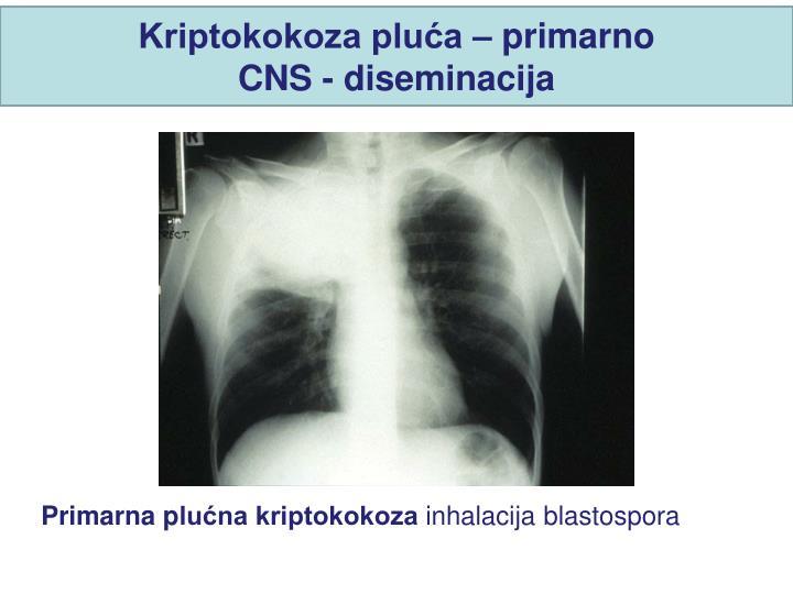Kriptokokoza pluća – primarno