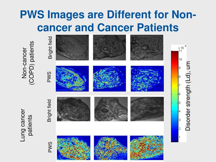 PWS Images are Different for Non-cancer and Cancer Patients