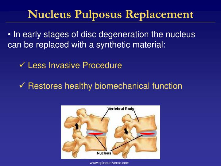 Nucleus Pulposus Replacement