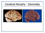 cerebral atrophy demnetia