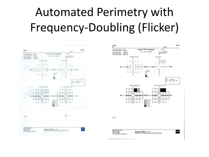 Automated Perimetry with Frequency-Doubling (Flicker)