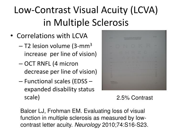 Low-Contrast Visual Acuity (LCVA) in Multiple Sclerosis