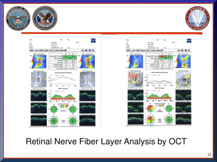 Retinal Nerve Fiber Layer Analysis by OCT