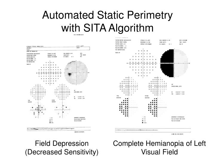 Automated Static Perimetry with SITA Algorithm