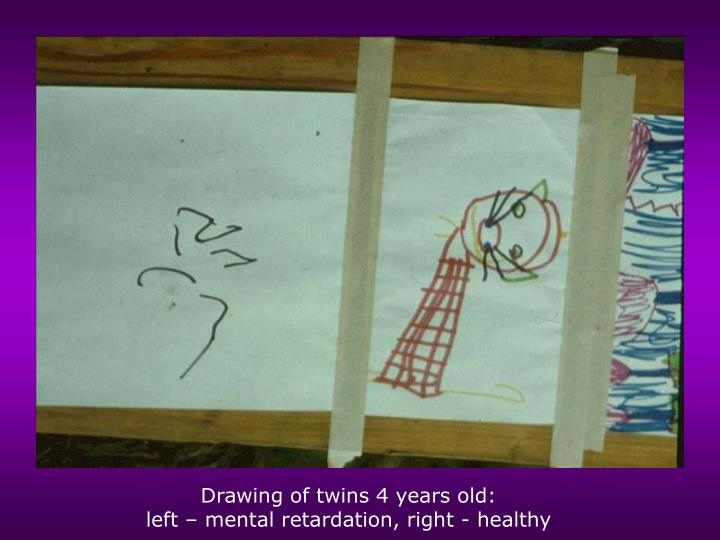 Drawing of twins 4 years old: