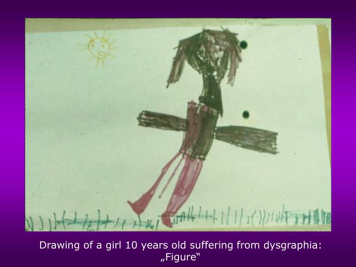 """Drawing of a girl 10 years old suffering from dysgraphia: """"Figure"""""""