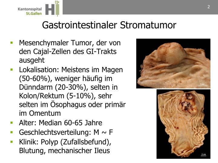 Gastrointestinaler Stromatumor
