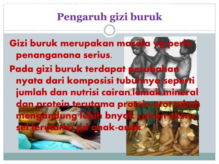 Saat ini di Indonesia tercatat 35,7% anak - anak menderita gizi buruk, lebih tinggi daripada tahun 2010 lalu.