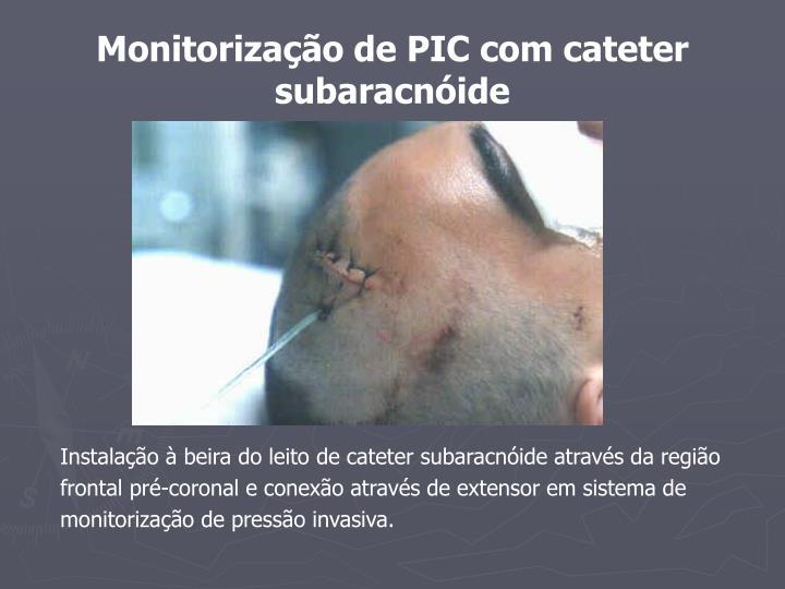 Monitorização de PIC com cateter subaracnóide