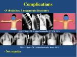 complications1