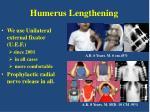 humerus lengthening