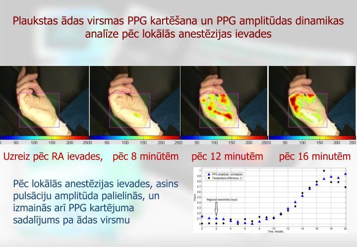 Plaukstas ādas virsmas PPG kartēšana un PPG amplitūdas dinamikas analīze pēc lokālās anestēzijas ievades
