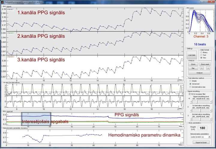 1.kanāla PPG signāls