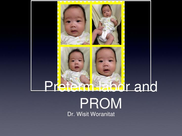 preterm labor and prom n.