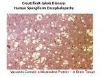 creutzfledt jakob disease human spongiform encephalopathy