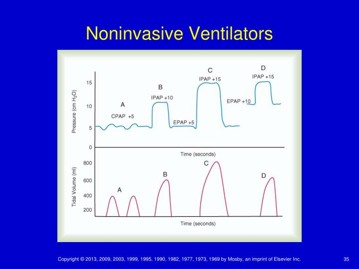 Noninvasive Ventilators