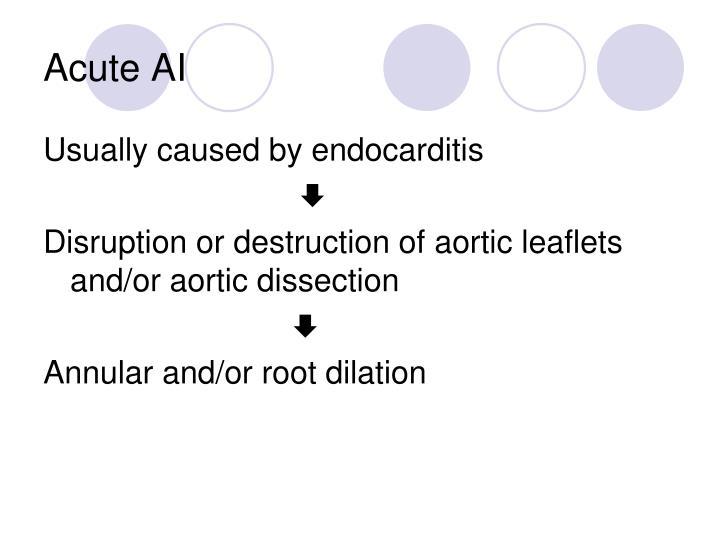 Acute AI